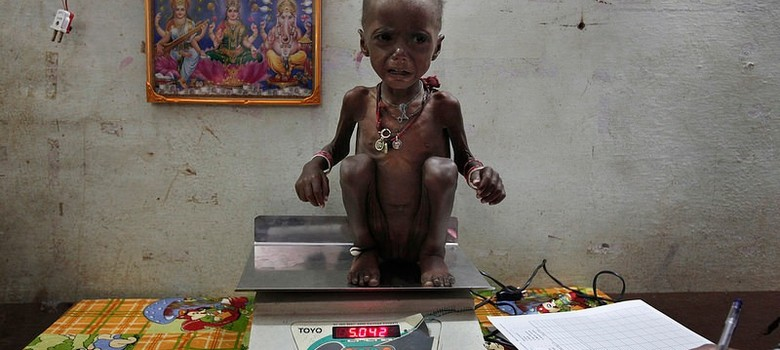 Despite soaring child-health spending, 40 million Indian children are stunted