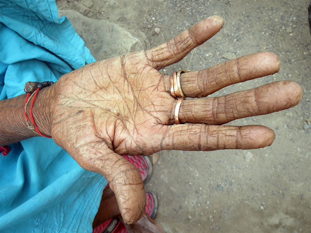 The elderly and the poor is India have hardened, wrinkled hands.