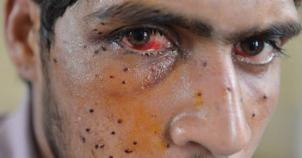 CRPF won't give up pellet guns in Kashmir, says it's the 'least lethal' option
