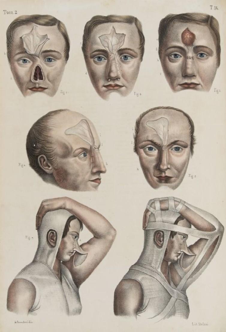 plastic surgery role in america essay