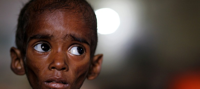 Hunger is India's greatest problem even today. So why don't we ever hear about it?