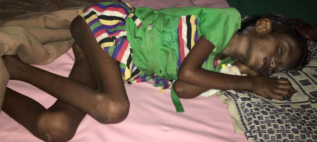 Encephalitis killed children in Malkangiri – but the push came from hunger