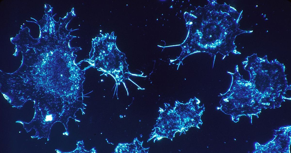 Lab notes: A new subtype of cervical cancer that may need new treatment