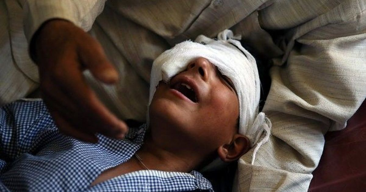 Amnesty International calls for criminal inquiry into use of pump action guns in Kashmir