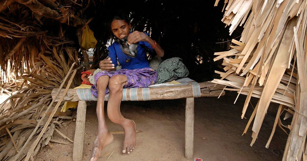 A disease in Dhanbad has left children without smiles