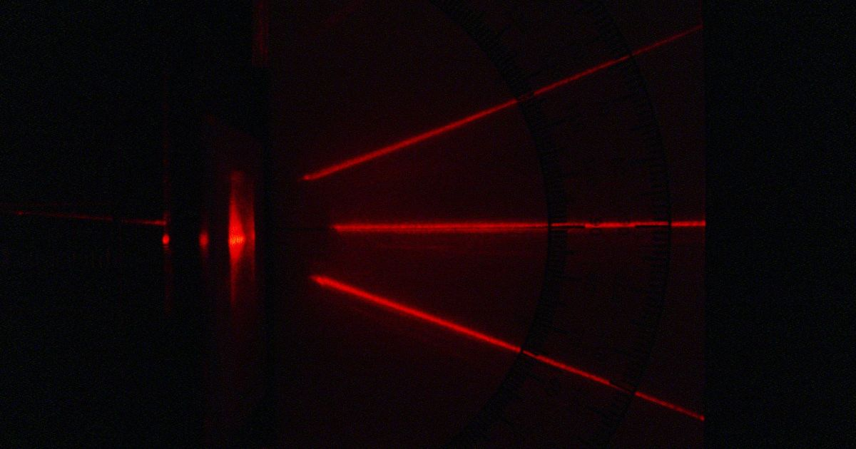 Lab notes: Lasers can help monitor burn wound healing