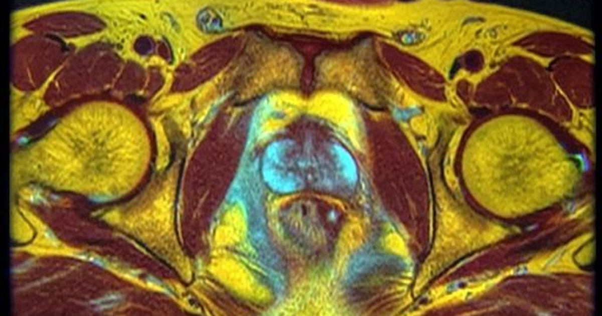 Lab notes: One step closer to a long-awaited, more reliable test for prostate cancer
