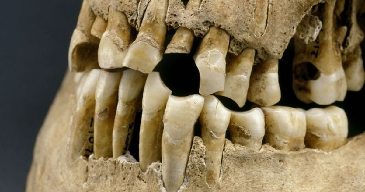 Our ancestors had dental problems too – even without the sugary drinks and sweets
