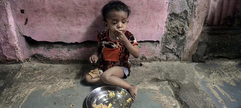 malnutrition in india Malnutrition in india in a nation with the growth potential of india, it is somewhat remarkable to discover that the country has a higher rate of malnourished children than sub-saharan africa.