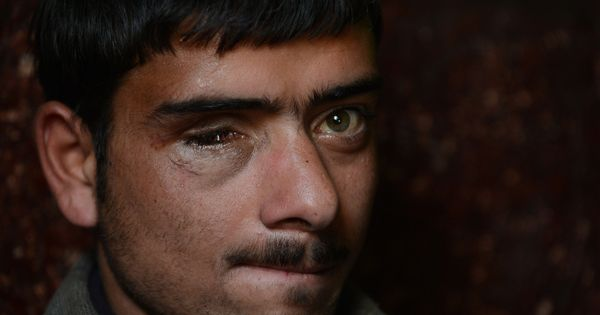 'Within the blink of an eye, half one's world is lost': Kashmir's pellet victims fight dark battles