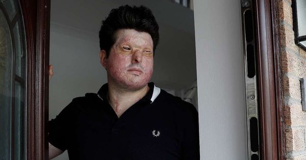 Video: Meet the 32-year old acid attack survivor who has had 90% of his face reconstructed