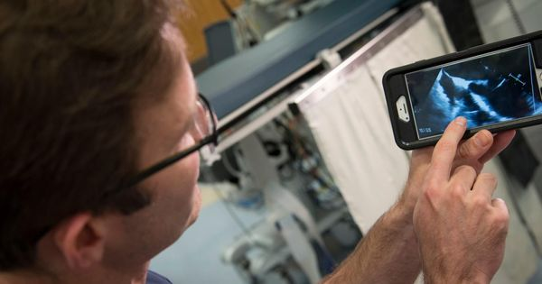 Video: Doctors vacuum out fungal infections that developed around a patient's pacemaker