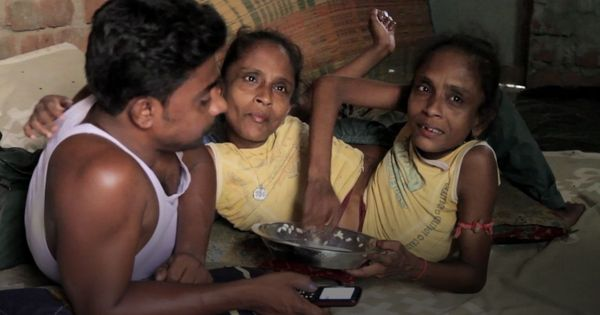 Meet the conjoined twins from West Bengal who fell in love with the same man