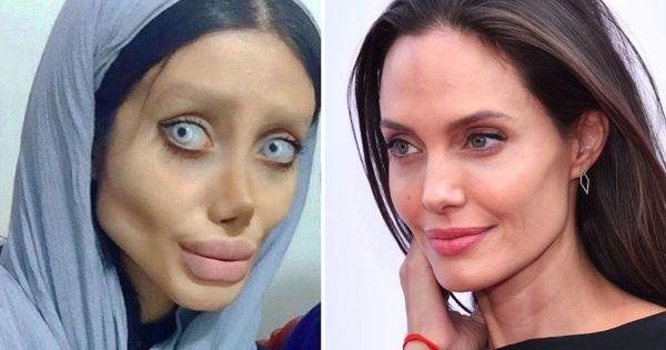 एंजलिना जोली की तरह दिखने के लिए 50 सर्जरियां करवाने वाली सहर तबर की सच्चाई क्या है?