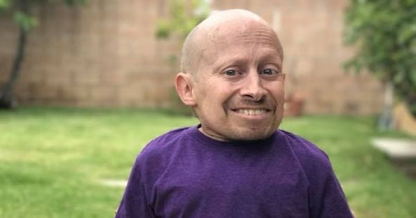Verne Troyer, who played Mini Me in Austin Powers movies, dies at 49