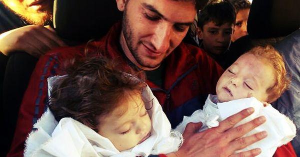 सीरिया में संदिग्ध रासायनिक हमले के शिकार इन दो बच्चों की तस्वीरों ने दुनिया को झकझोर दिया है