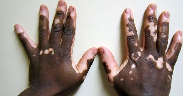 Out, white spot: Erasing memory in skin cells can help treat disfiguring disease vitiligo