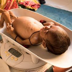 One child dies every minute of severe acute malnutrition. How can India save them?