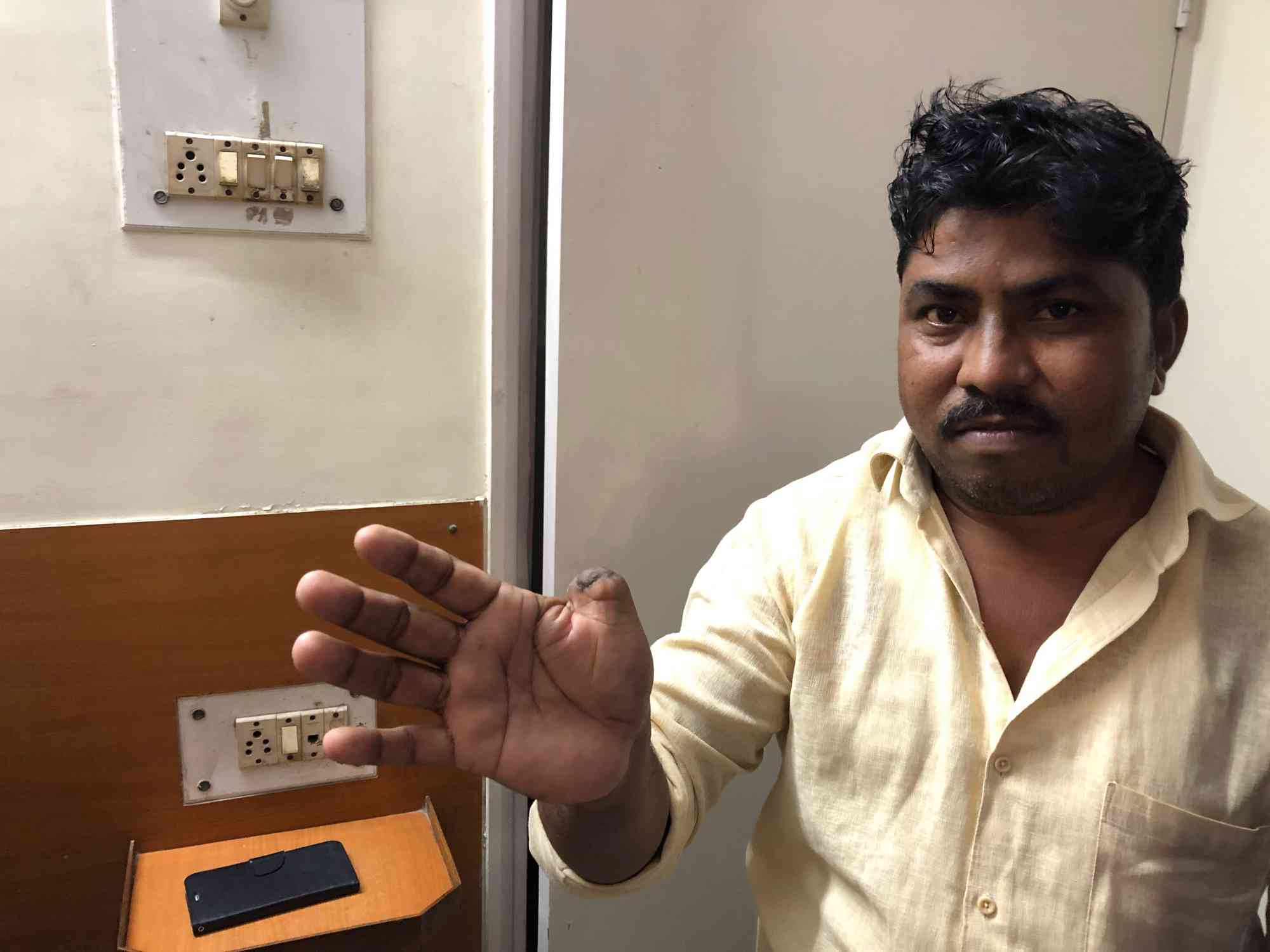 Sanitation worker Sanjay Pandharina Gote lost his thumb in the hydraulic cylinder of a garbage truck. (Photo credit: Sujatha Fernandes).