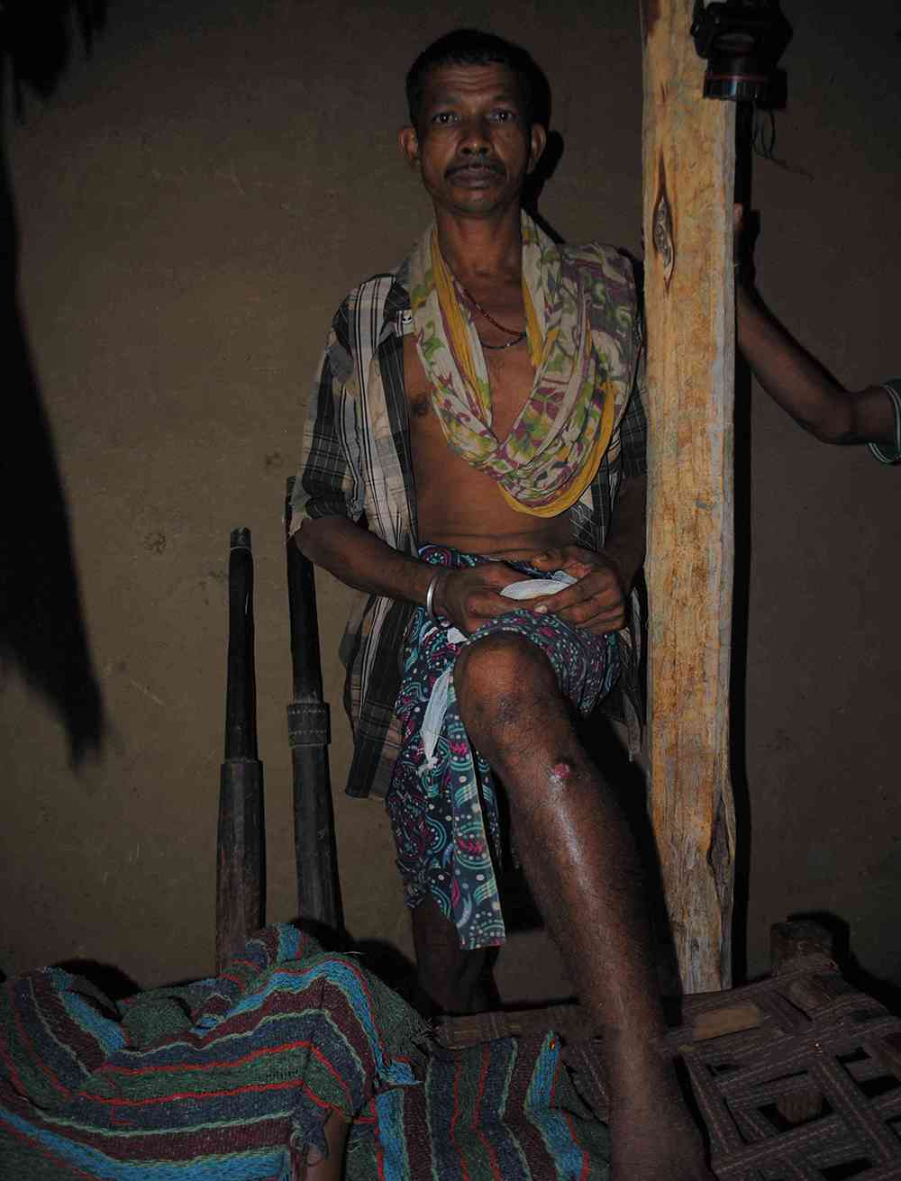 Kadti Suka was wounded in the firing while his son Kadti Ayta was killed. Photo credit: Malini Subramaniam
