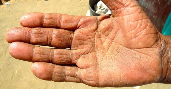 Rajasthan presses on with Aadhaar after fingerprint readers fail: We'll buy iris scanners