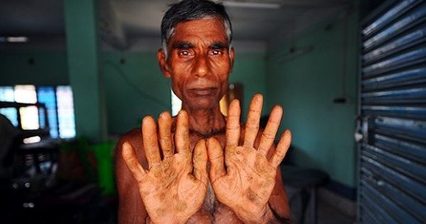 Photos: Climate change has worsened arsenic poisoning in West Bengal