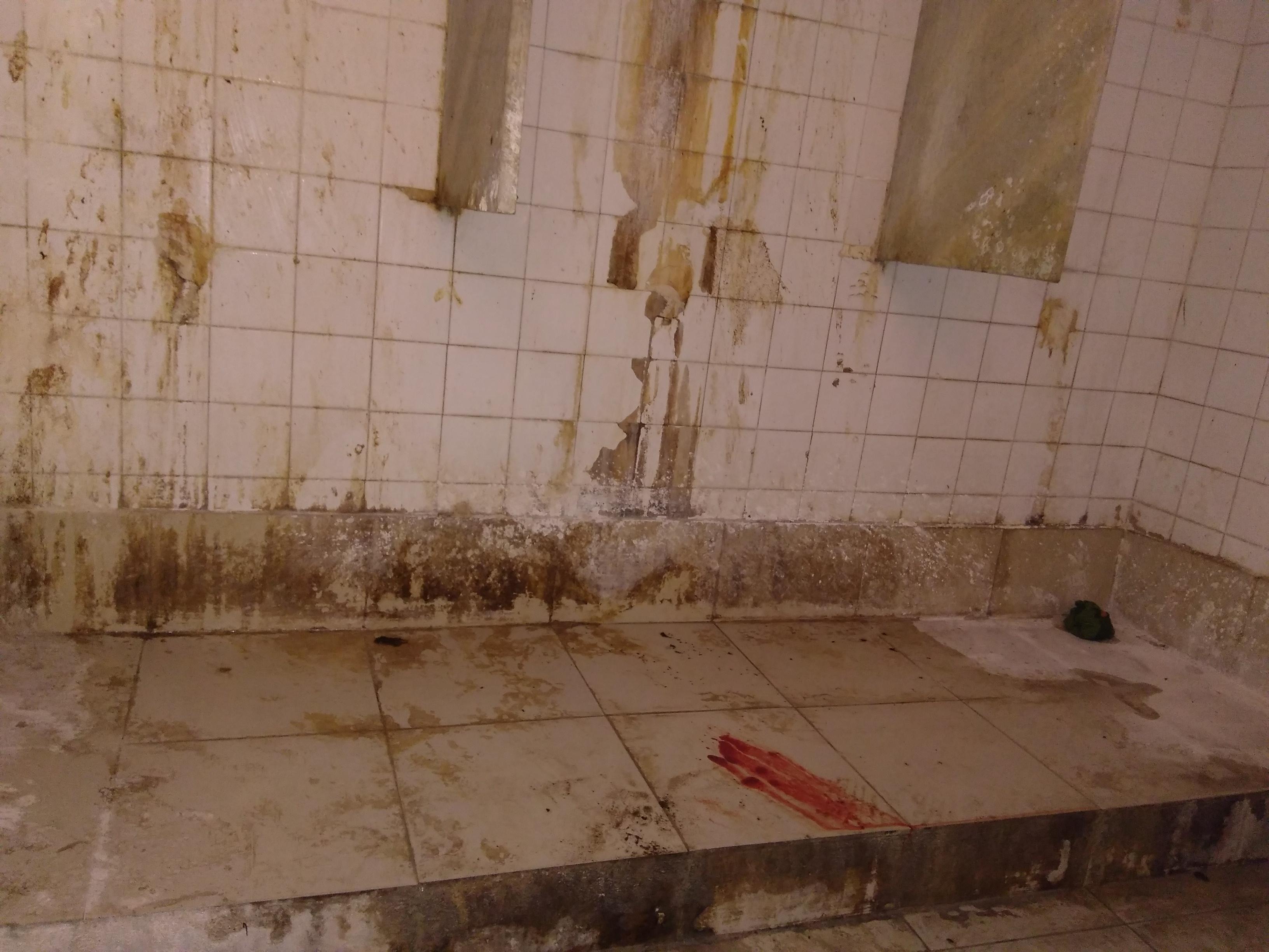 आईजीआईएमएस स्थित शौचालय