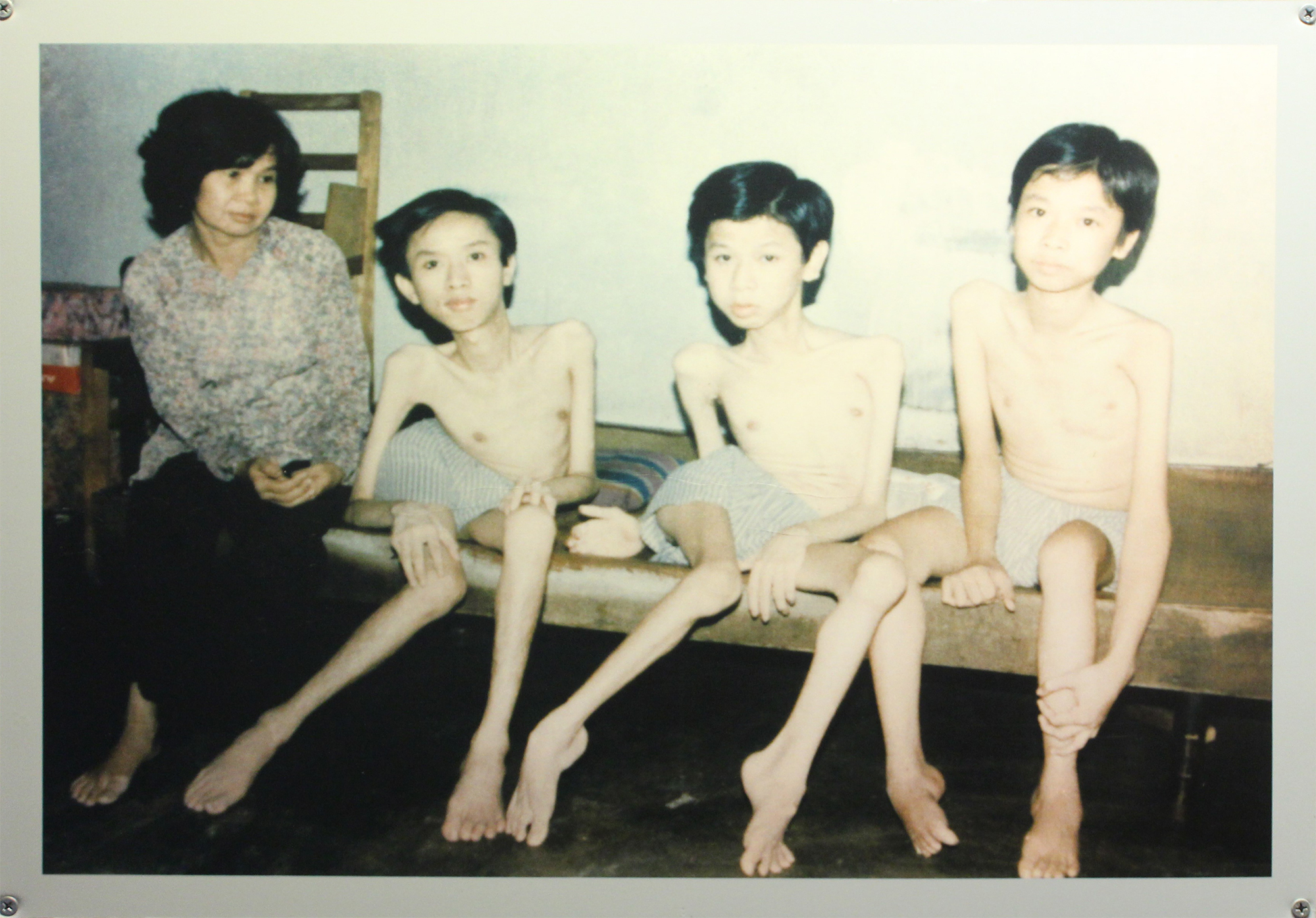 Entire families were affected by the transgenerational effects of Agent Orange. (Image: War Remnants Museum)