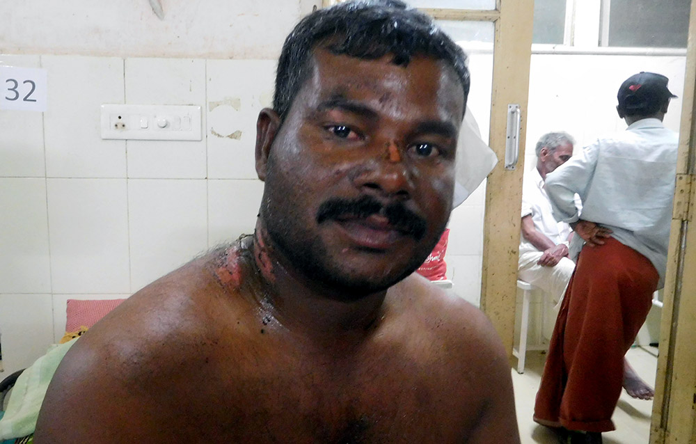Alban Alphones from Poonthura fishing village spent two days in the sea after his boat was capsized in Cyclone Ockhi. He is under treatment at Government General Hospital at Thiruvananthapuram. Photo credit: TA Ameerudheen
