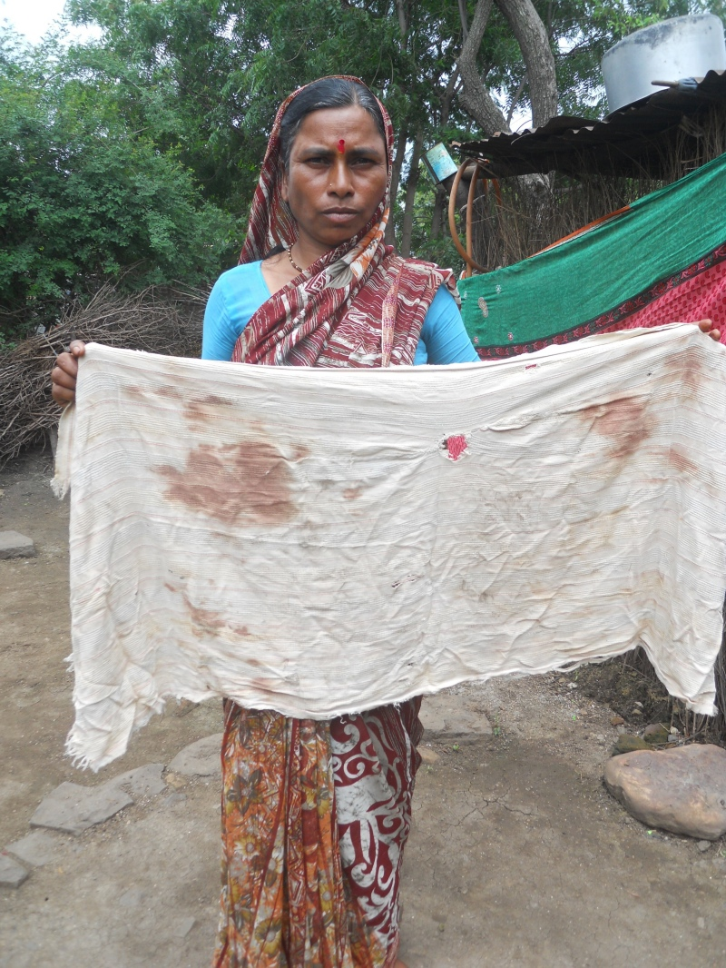 Aruna Dahire with a blood-stained towel from the day she was beaten. (Photo credit: Rahi Gaikwad).