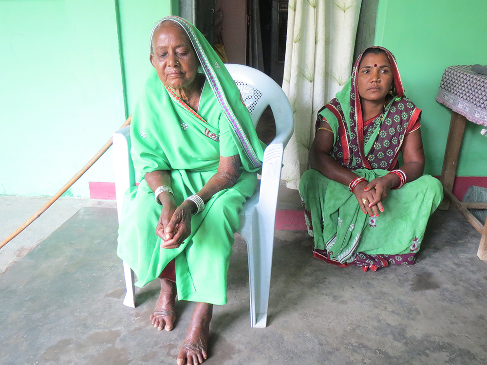Alekmati Chauhan, a widow in Baghburha village, Raigarh, had a hip fracture 3 years ago, and walks with a limp. The ration shop in Bhuikuri has stairs, she said, which she is unable to access without assistance. Image credit: Anumeha Yadav