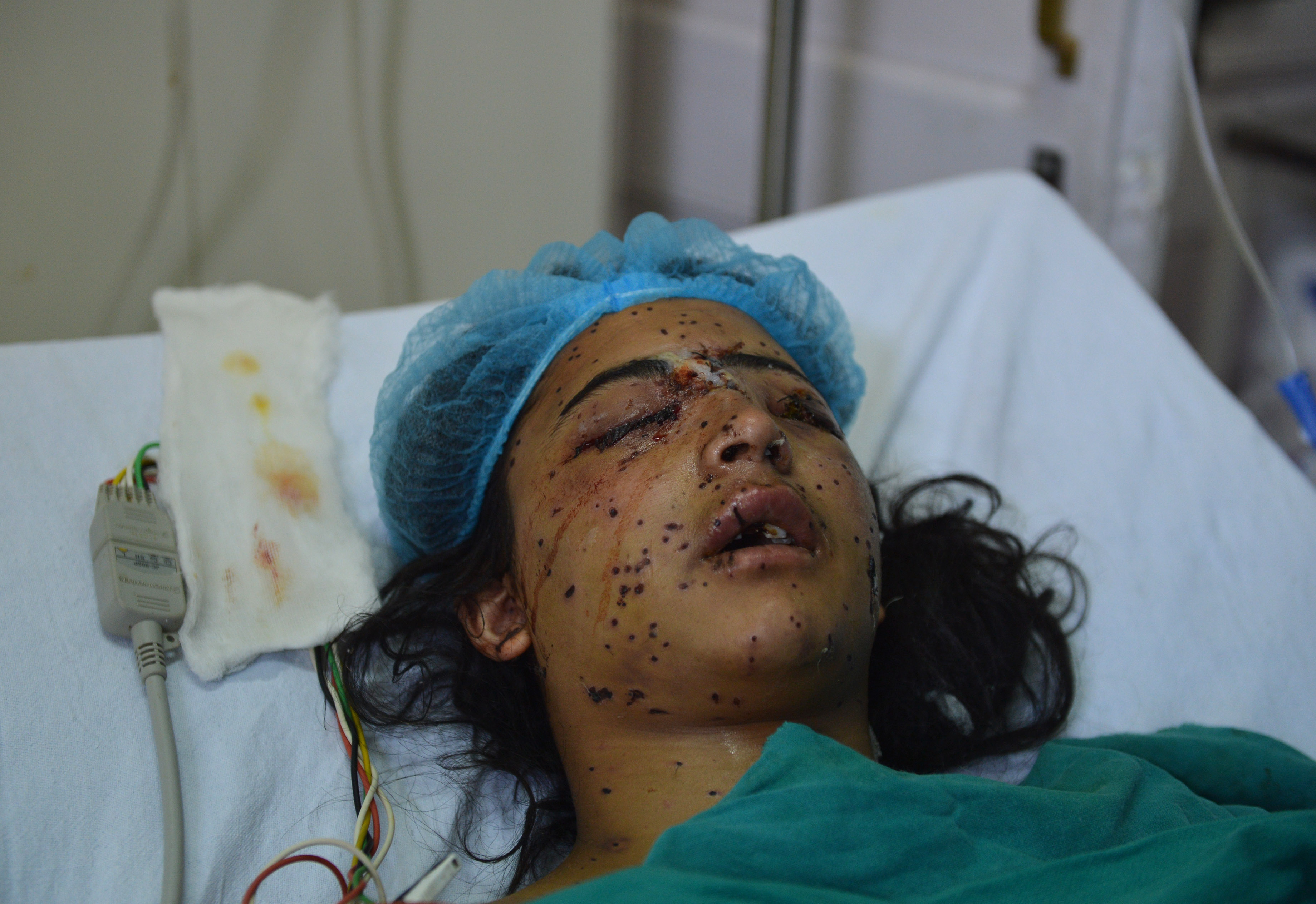 Insha Malik, 14, was blinded after being hit by pellets fired by Indian security forces in 2016. Photo credit: AFP