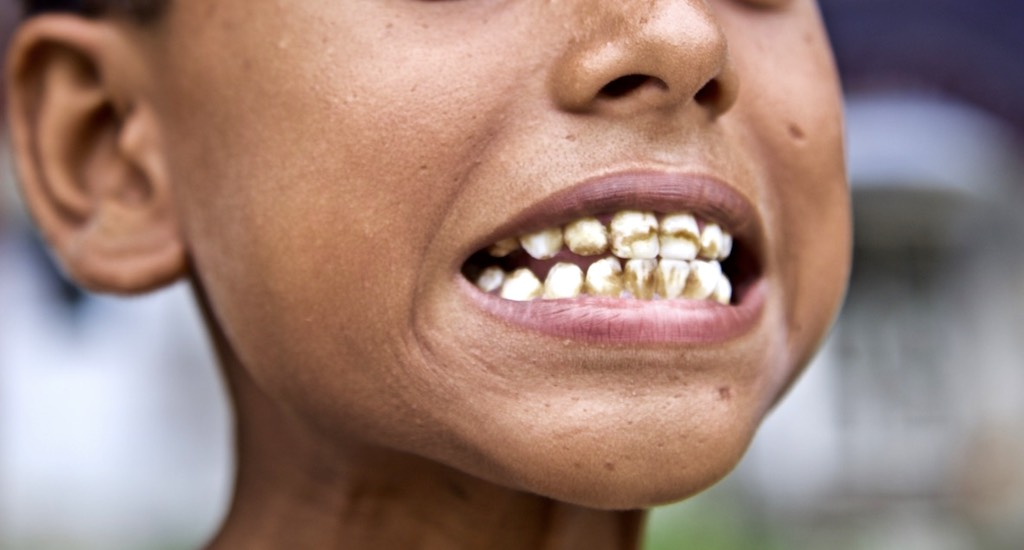 It is hard to find a child above 6-7 years age in Brahman Tola who does not have strained teeth due to dental fluorosis. Most children cannot touch their toes, which is a sign of early stage of skeletal fluorosis. Photo credit: Eklavya Prasad