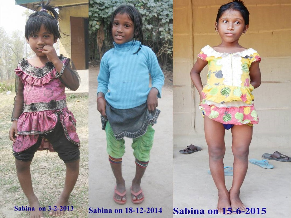 Sabina has slowly recovered from the effects of fluorosis after treatment. (Credit: Dhahran Saikia)