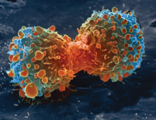 Lung cancer cell during cell division. (Image: National Institutes of Health/Wikimedia Commons)
