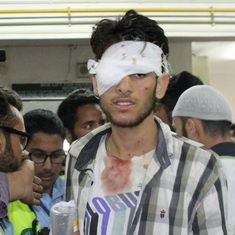 Mumbai doctors brought in to treat pellet injuries performed 46 eye surgeries in Kashmir in 3 days
