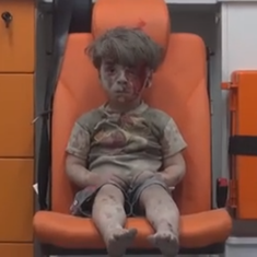 Watch the dazed and bloodied face of this Syrian boy to know what war is doing to children