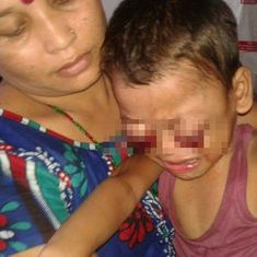 Doctors find that the 'boy with bleeding eyes' has cancer