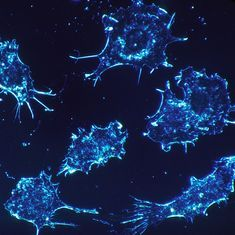 Lab notes: Graphene can help targeted delivery of cervical cancer drugs
