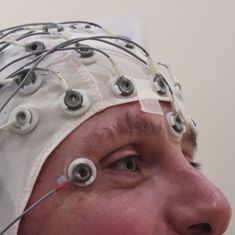 Lab notes: Scientists find a protein key to epilepsy treatment