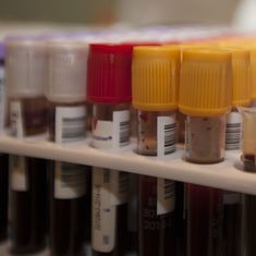Video: A new low-cost and time saving blood test