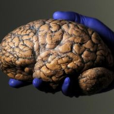 Finding new answers for memory loss with new tools to look at the brain