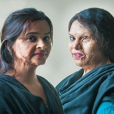 Video: A Delhi based NGO is infusing love and hope back into the lives of acid attack survivors