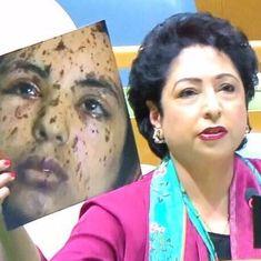 भारत को घेरने की जल्दबाज़ी में पाकिस्तान ने गाज़ा की घायल लड़की को कश्मीरी बताया