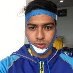 Vijay Hazare Trophy: Unmukt Chand smashes ton with broken jaw to take Delhi home