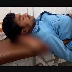 उत्तर प्रदेश : डॉक्टरों ने मरीज के कटे पैर को ही उसका तकिया बना दिया
