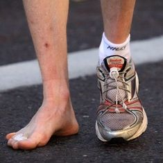 Watch: What does the shape of your feet tell you about your running capabilities?