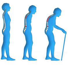हड्डियां कमजोर होना यानी ऑस्टियोपोरोसिस को कैसे पहचानें?