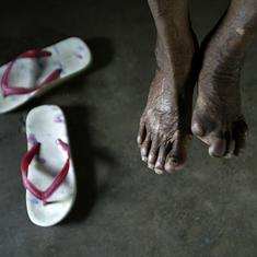 Lok Sabha passes bill to remove leprosy as ground for divorce