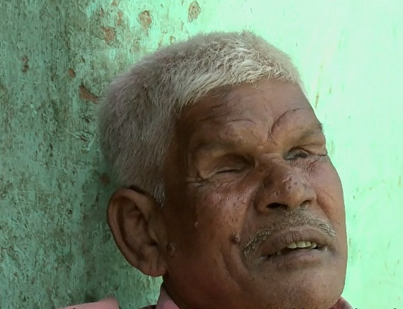 Bhola Chaudhary, who was blinded by the police in Bhagalpur.